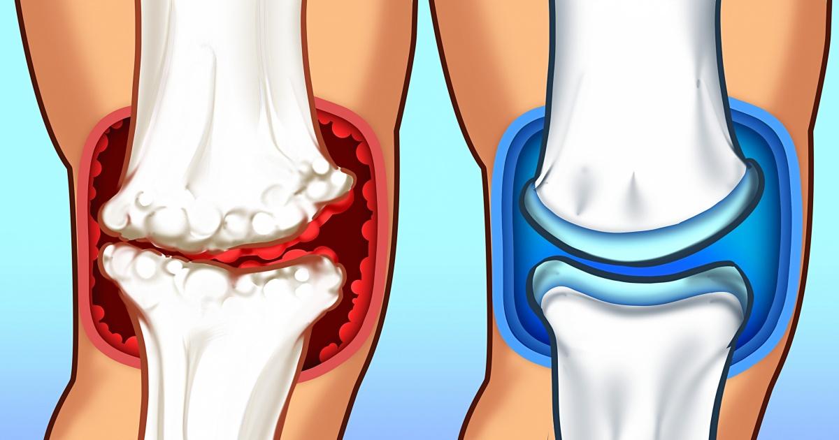inflamația articulară care se vindecă