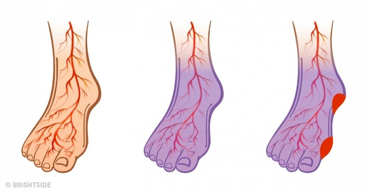 Picioarele umflate cu vene bombate cauze umflate ale tibiei picioare umflate retenție de apă